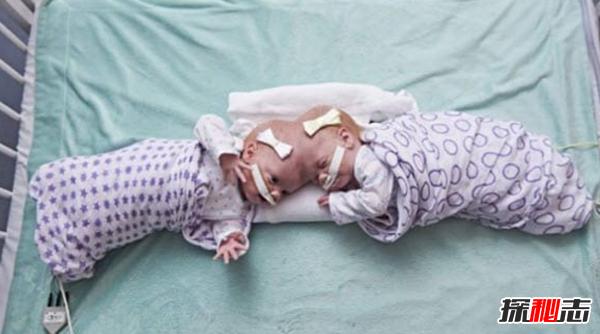 关于连体双胞胎的十大心酸事实